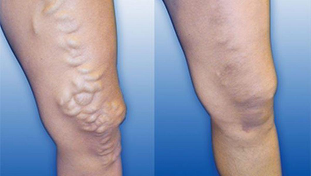 funcționarea eliminării varicozelor pe picioare